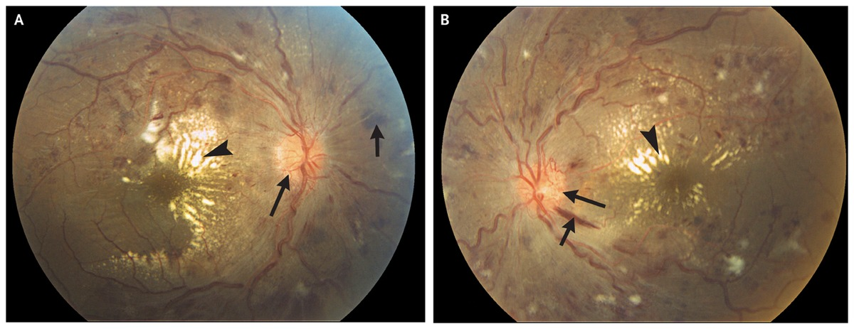 Bilateral Blurred Vision In A Healthy Adult Nejm