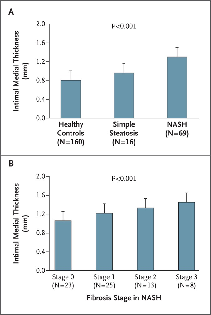 Risk of cardiovascular disease in patients with nonalcoholic fatty carotid artery intimal medial thickness in patients with nonalcoholic fatty liver disease ccuart Gallery