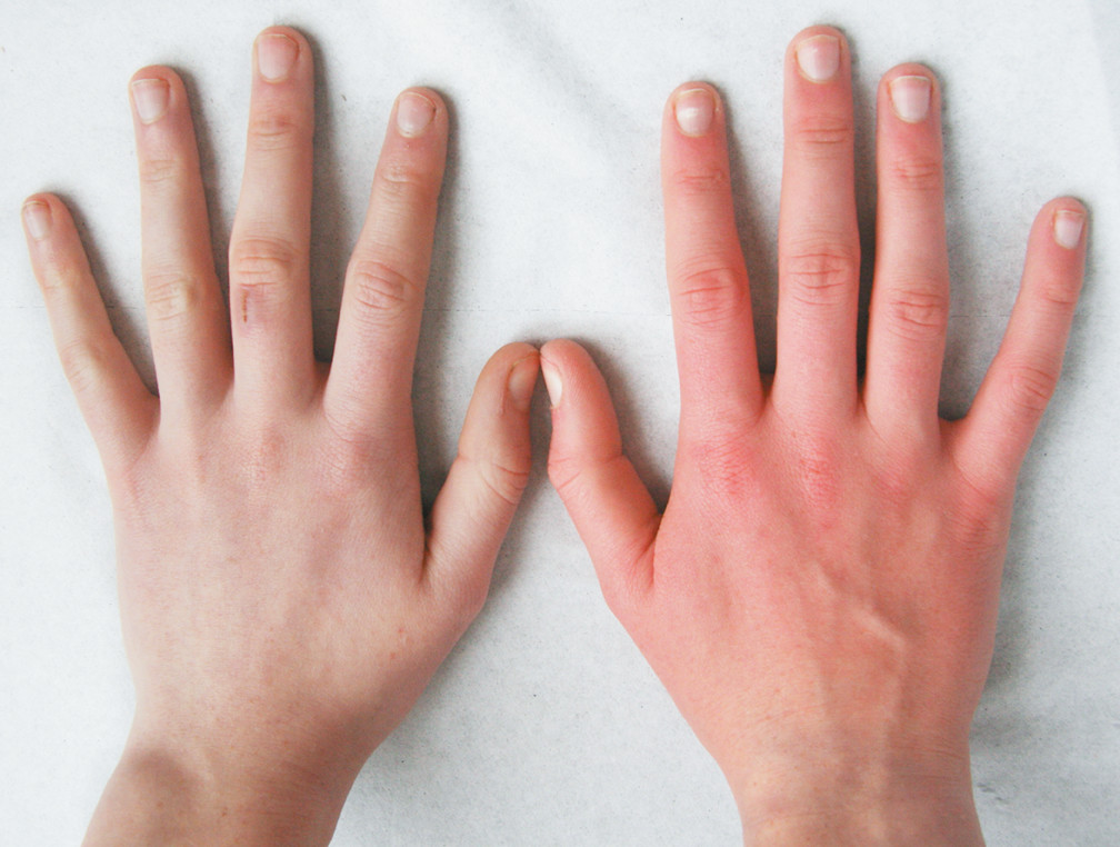 Erythromelalgia Symptoms, Diagnosis, Treatments and Causes ...