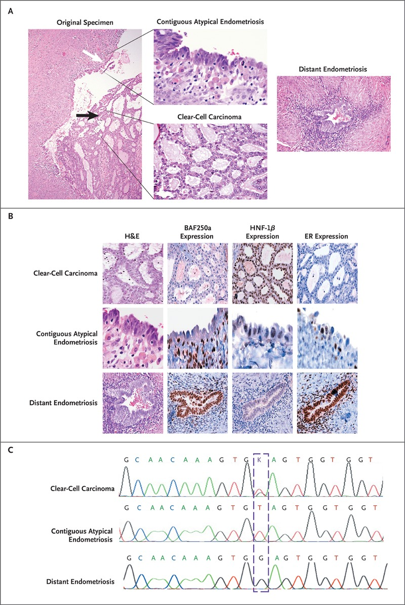 Arid1a Mutations In Endometriosis Associated Ovarian Carcinomas Nejm