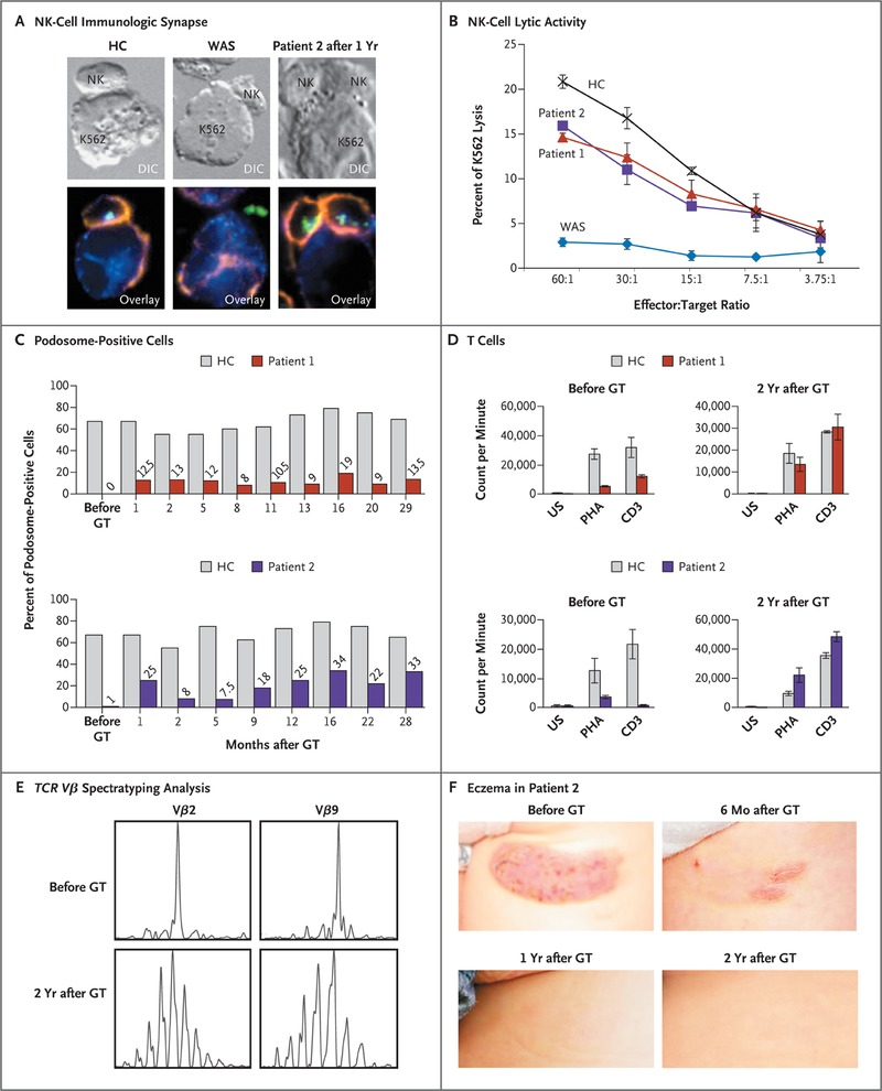 Stem cell gene therapy for the wiskottaldrich syndrome nejm correction of leukocyte function after gene therapy gt ccuart Gallery