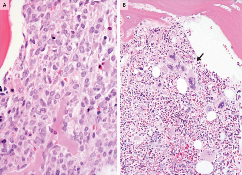 Case 36-2010 — A 50-Year-Old Woman with Pain and Loss of