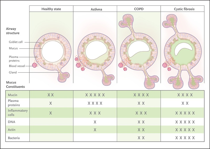 Airway Mucus Function and Dysfunction | NEJM