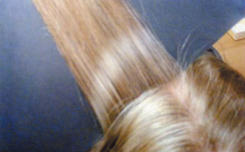 how to find head lice on blonde hair