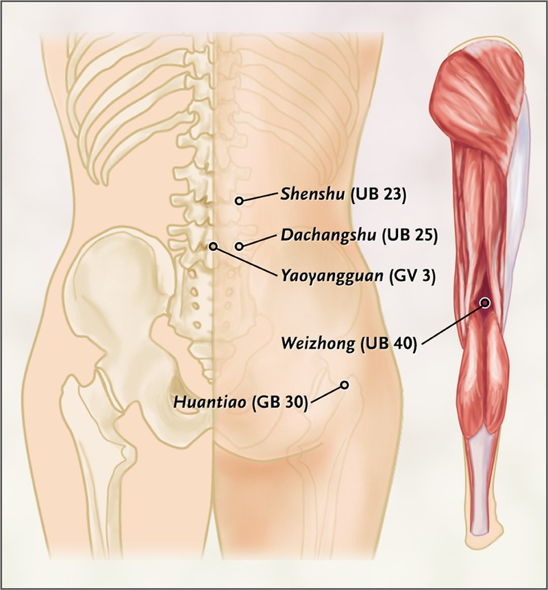 Acupuncture for Chronic Low Back Pain | NEJM