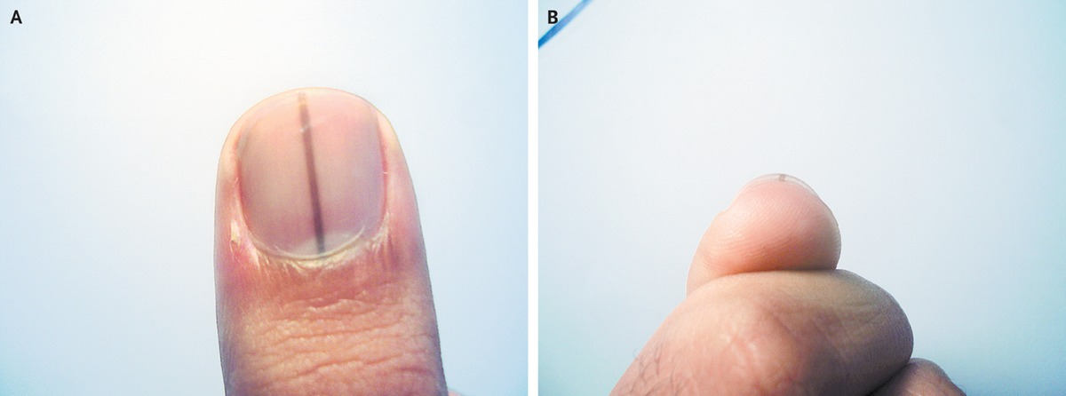 An Otherwise Healthy 23 Year Old Black Man Was Concerned About A Dark Line 1 Mm In Width Arising From The Nail Bed Of His Right Thumb Panels And B