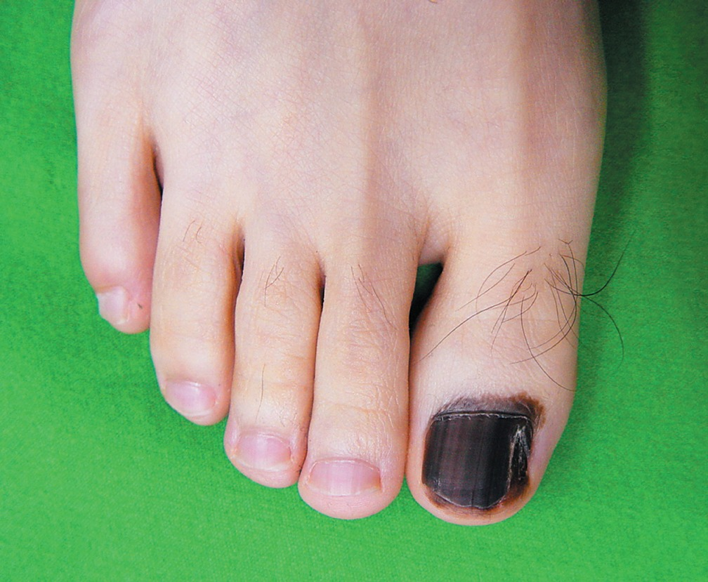 A Darkly Pigmented Linear Patch Had Started To Form Within The Toenail 4 Years Earlier And