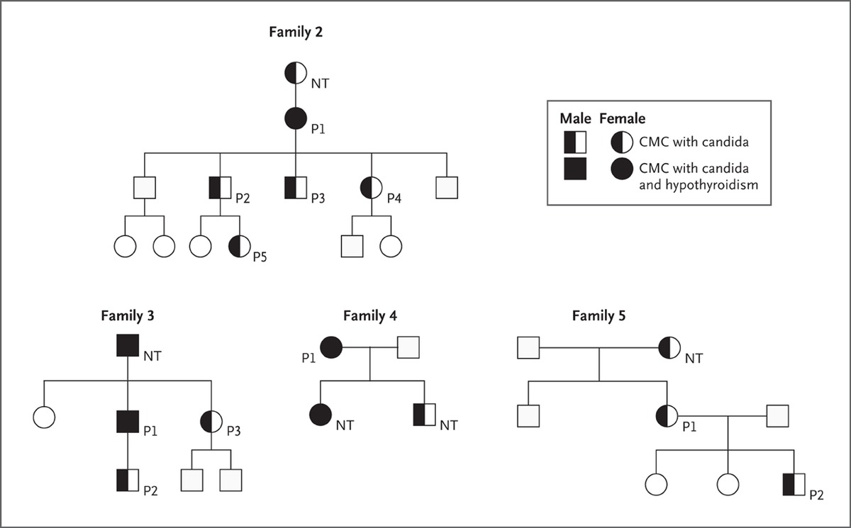 Stat1 mutations in autosomal dominant chronic mucocutaneous figure 4 confirmation of stat1 mutations in patients with chronic mucocutaneous candidiasis cmc shown are the pedigrees of four additional families with biocorpaavc