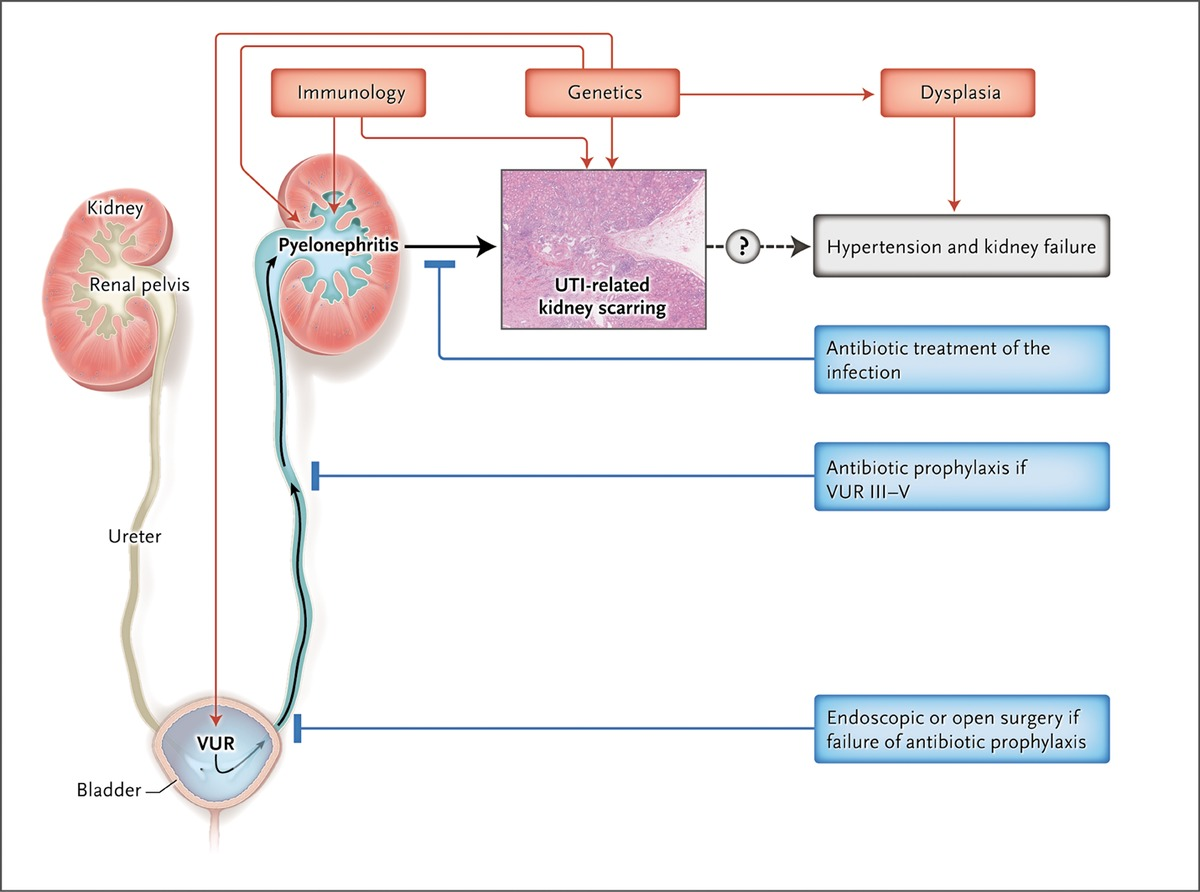 Febrile Urinary Tract Infections in Children | NEJM