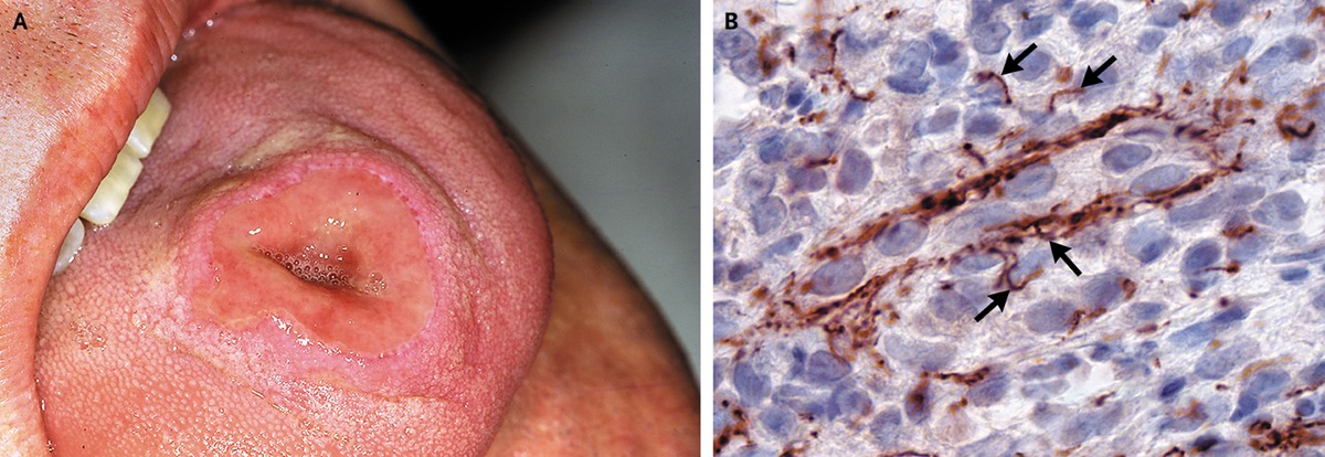 Syphilitic Chancre of the Tongue | NEJM