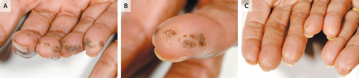 Warts Of The Fingertips