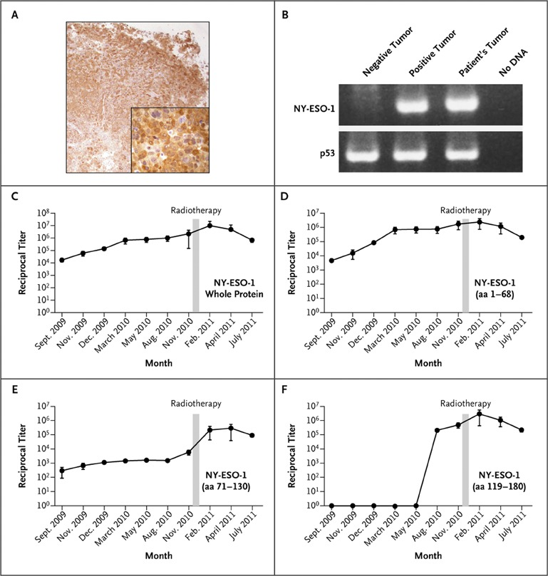 Immunologic Correlates of the Abscopal Effect in a Patient with