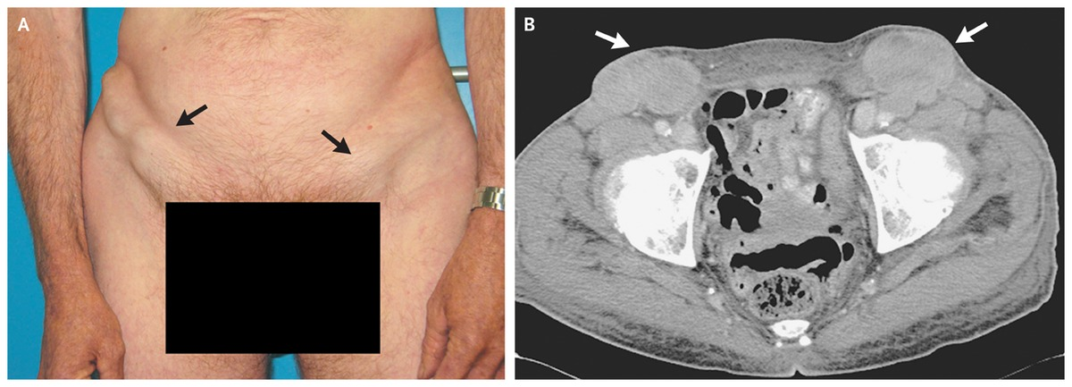 Metastatic Inguinal Lymphadenopathy Nejm