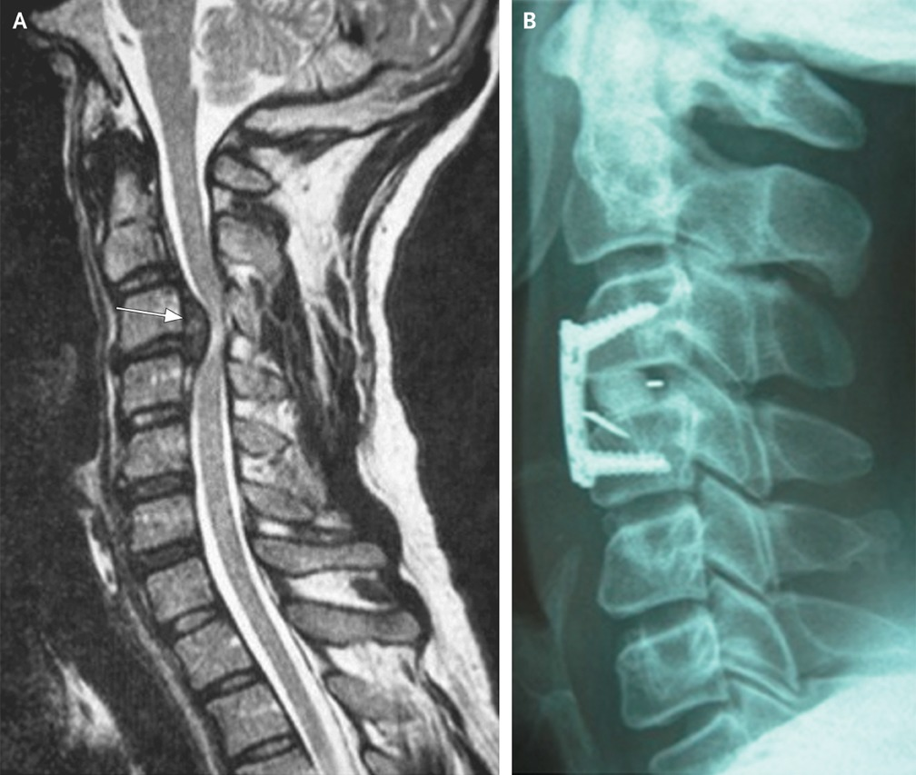 Tetraplegia After Heading A Soccer Ball Ten Minutes Later He Had Recovered Normal Strength On Examination At That Time Intense Cervical Pain