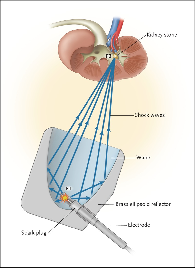 Shock Wave Lithotripsy For Renal Calculi Nejm The Free Body Diagrams Would Look Likethese Figure 1 Electrohydraulic Lithotripter Waves Blue Arrows Are Generated By