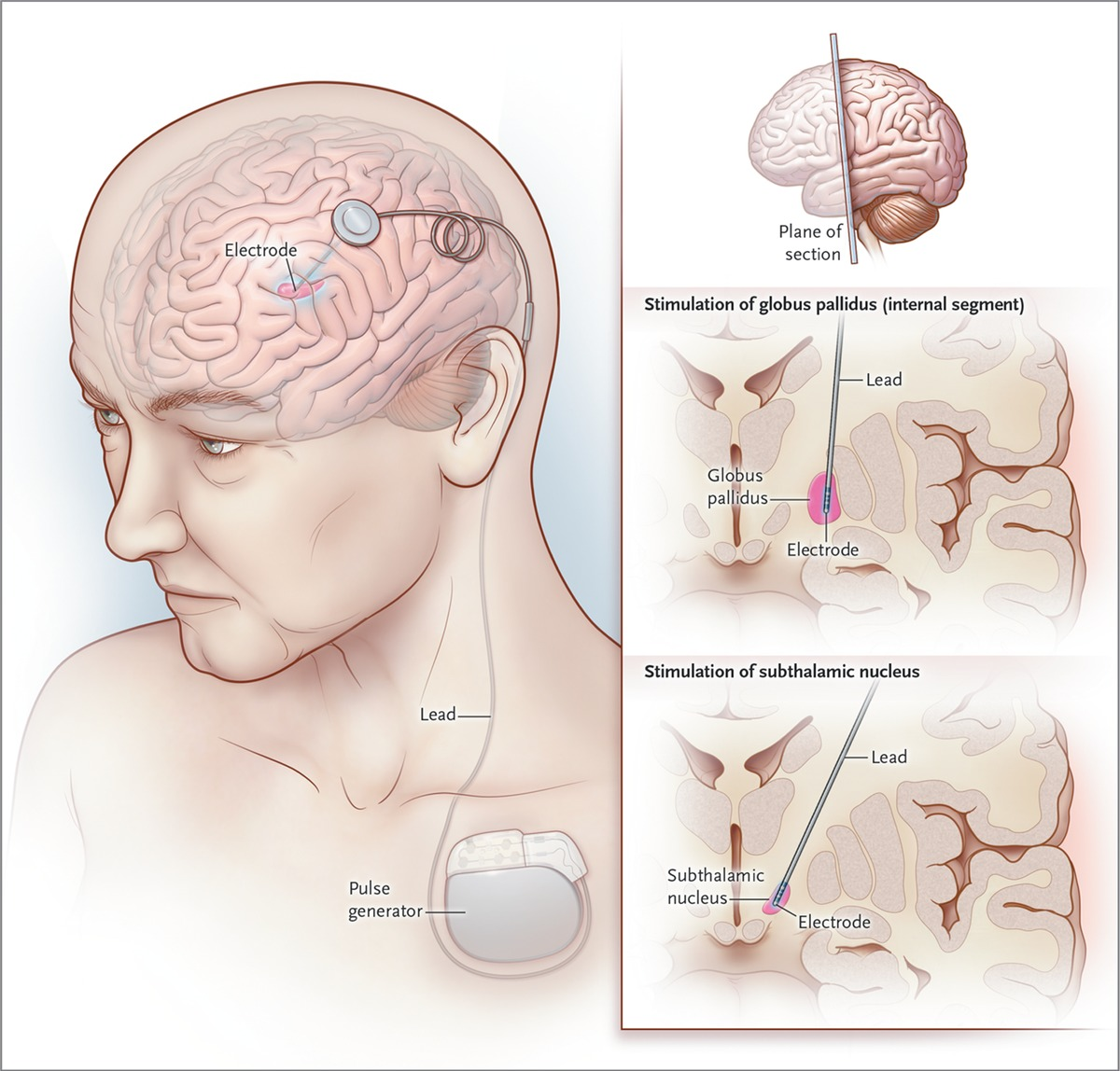 Deep Brain Stimulation For Parkinson S Disease Nejm