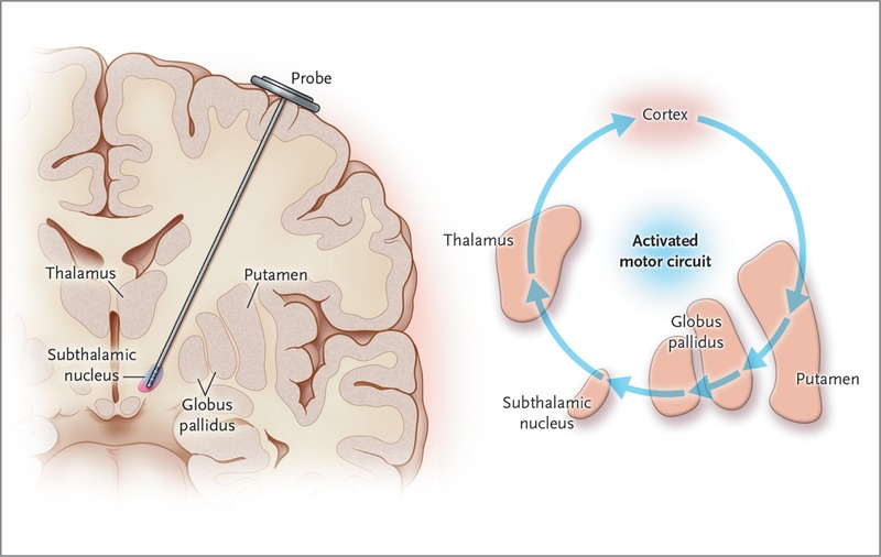 deep brain stimulation and parkinsons Los angeles -- a new type of deep brain stimulation system, with  in patients  with advanced, levodopa-responsive parkinson's disease in a.