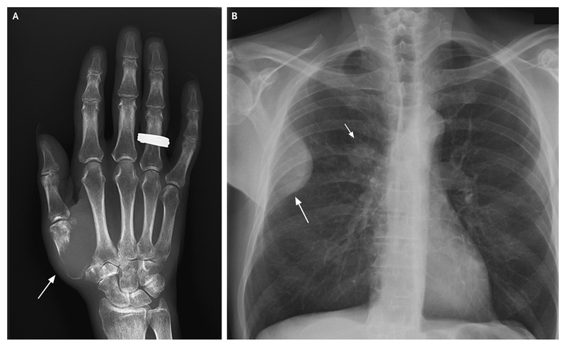 Pain in the Thumb Related to Disease in the Lung