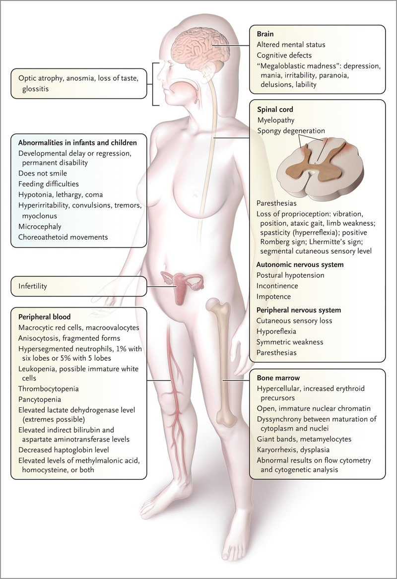 gastroparesis causes