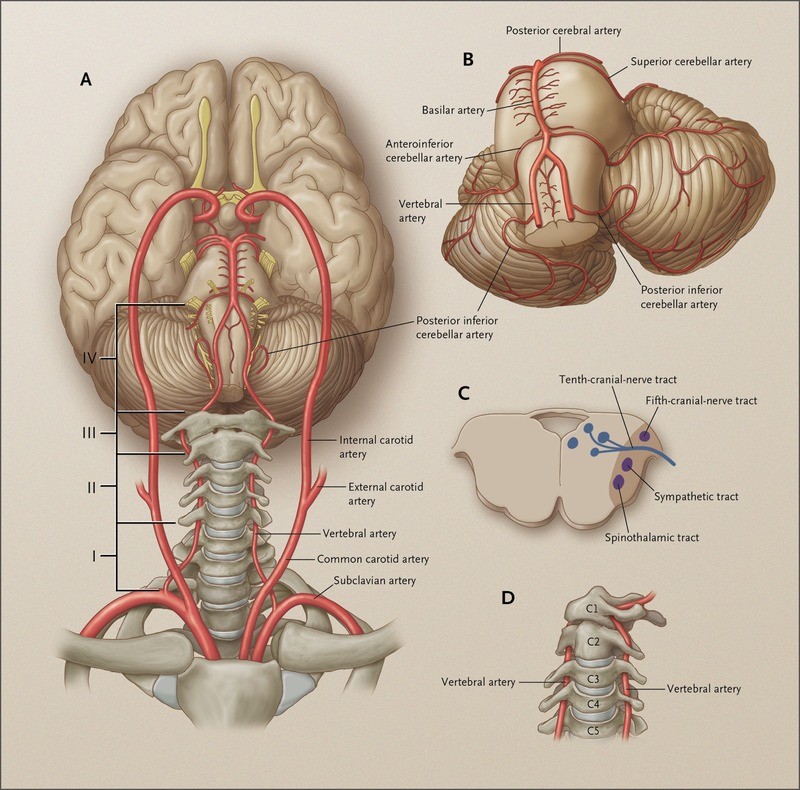 Case 34-2013 — A 69-Year-Old Man with Dizziness and Vomiting | NEJM
