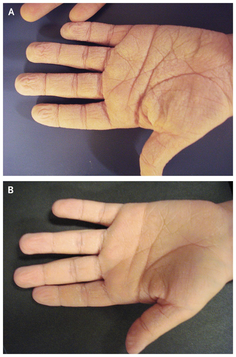 Aquagenic Wrinkling of the Palms in a Patient with Cystic Fibrosis ...