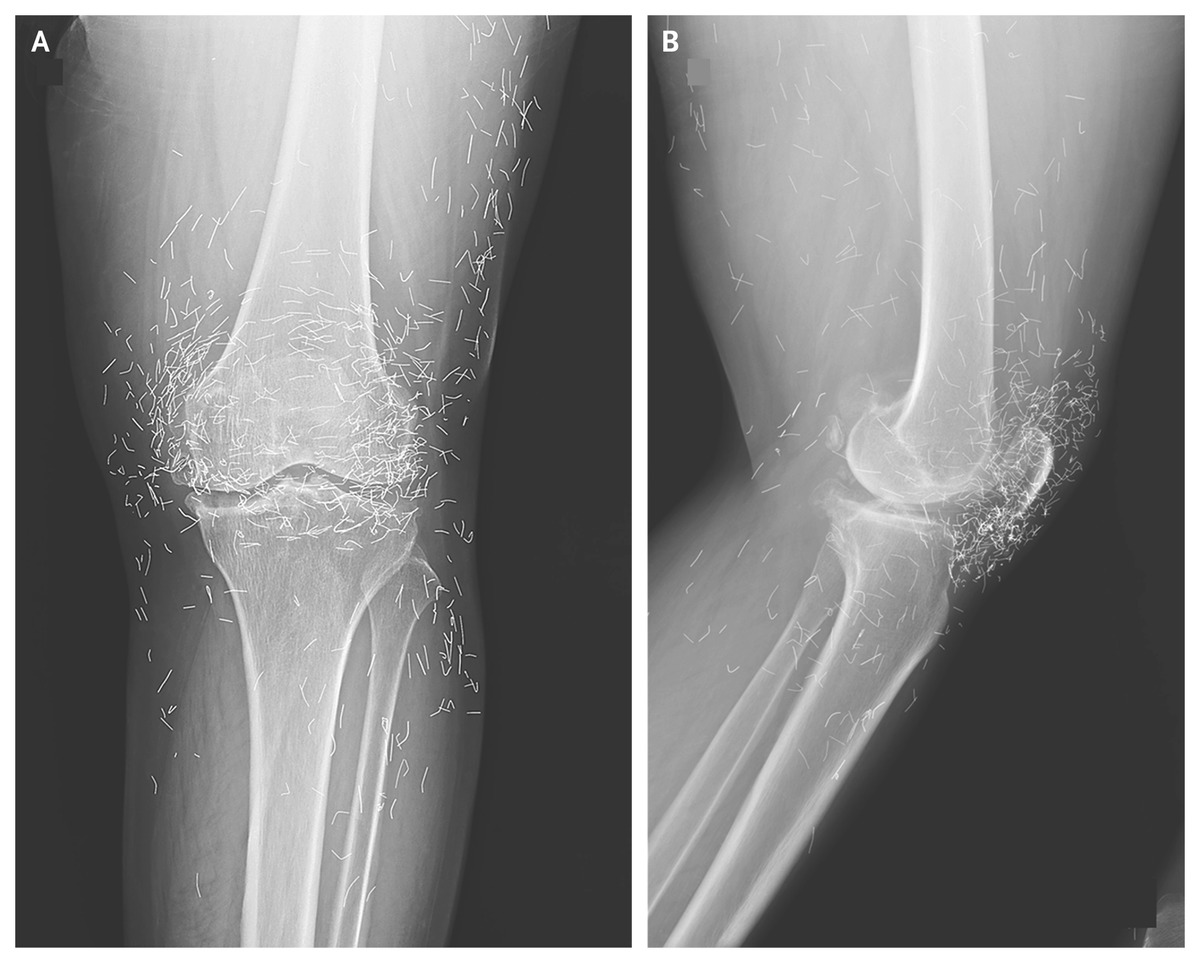Acupuncture with Gold Thread for Osteoarthritis of the Knee | NEJM