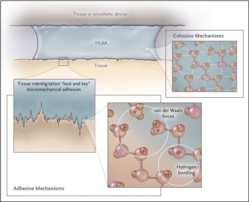 Sticking with Synthetic Tissue Sealants | NEJM