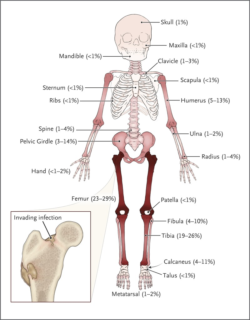 Acute Osteomyelitis In Children Nejm