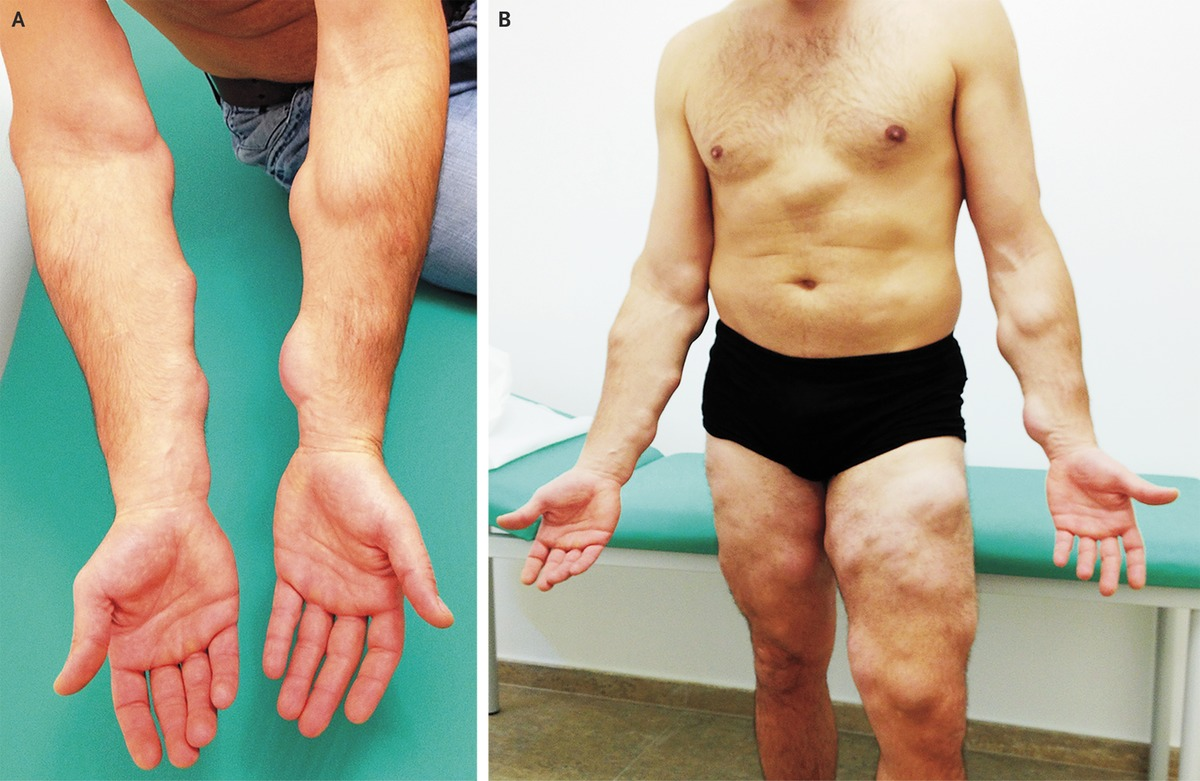A healthy 36-year-old man presented with a history of multiple subcutaneous  nodules that began to appear when he was 3 years of age.