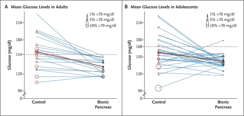 Outpatient Glycemic Control with a Bionic Pancreas in Type 1
