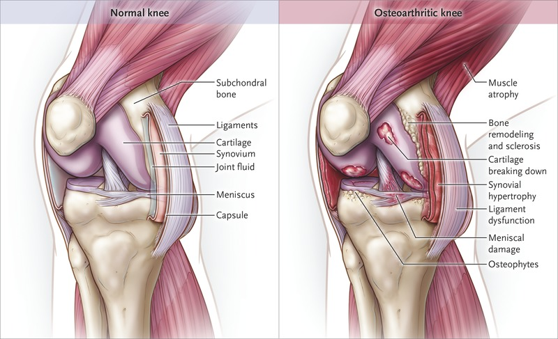 Viscosupplementation for osteoarthritis of the knee nejm schematic of the knee joint showing the synovial joint tissues affected in osteoarthritis ccuart Choice Image