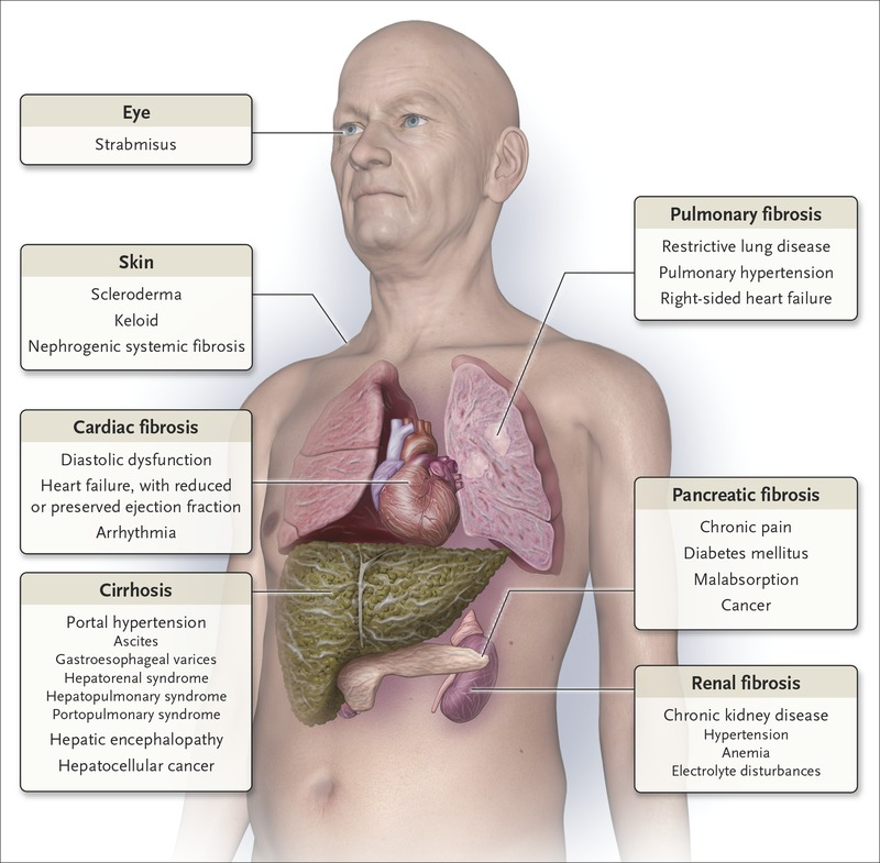 Fibrosis A Common Pathway To Organ Injury And Failure Nejm