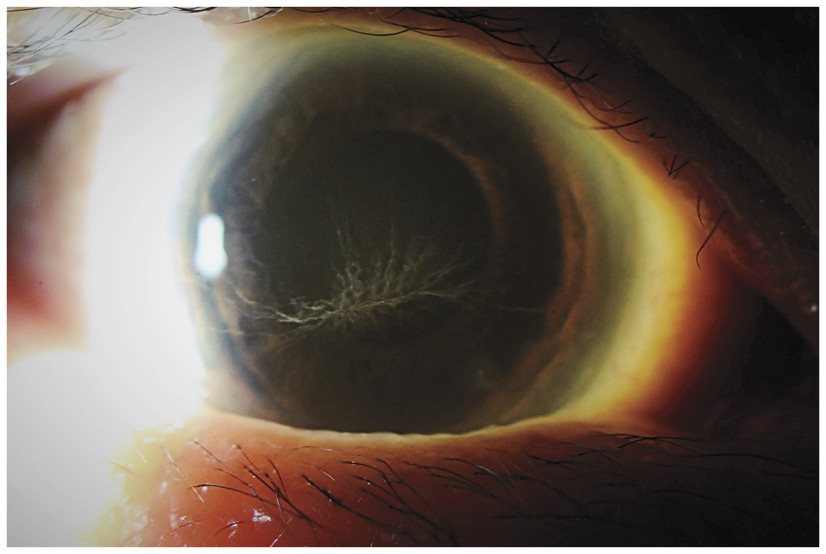 Amiodarone-Induced Vortex Keratopathy | NEJM