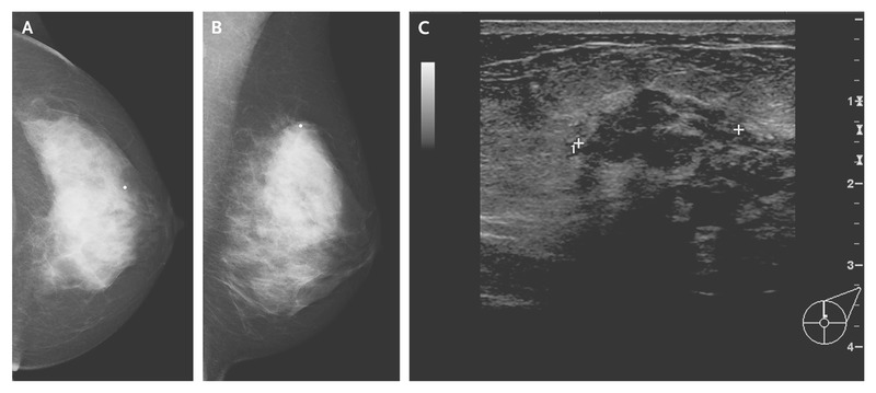 Case 1 2015 A 66 Year Old Woman With Metastatic Breast Cancer After Endocrine Therapy Nejm
