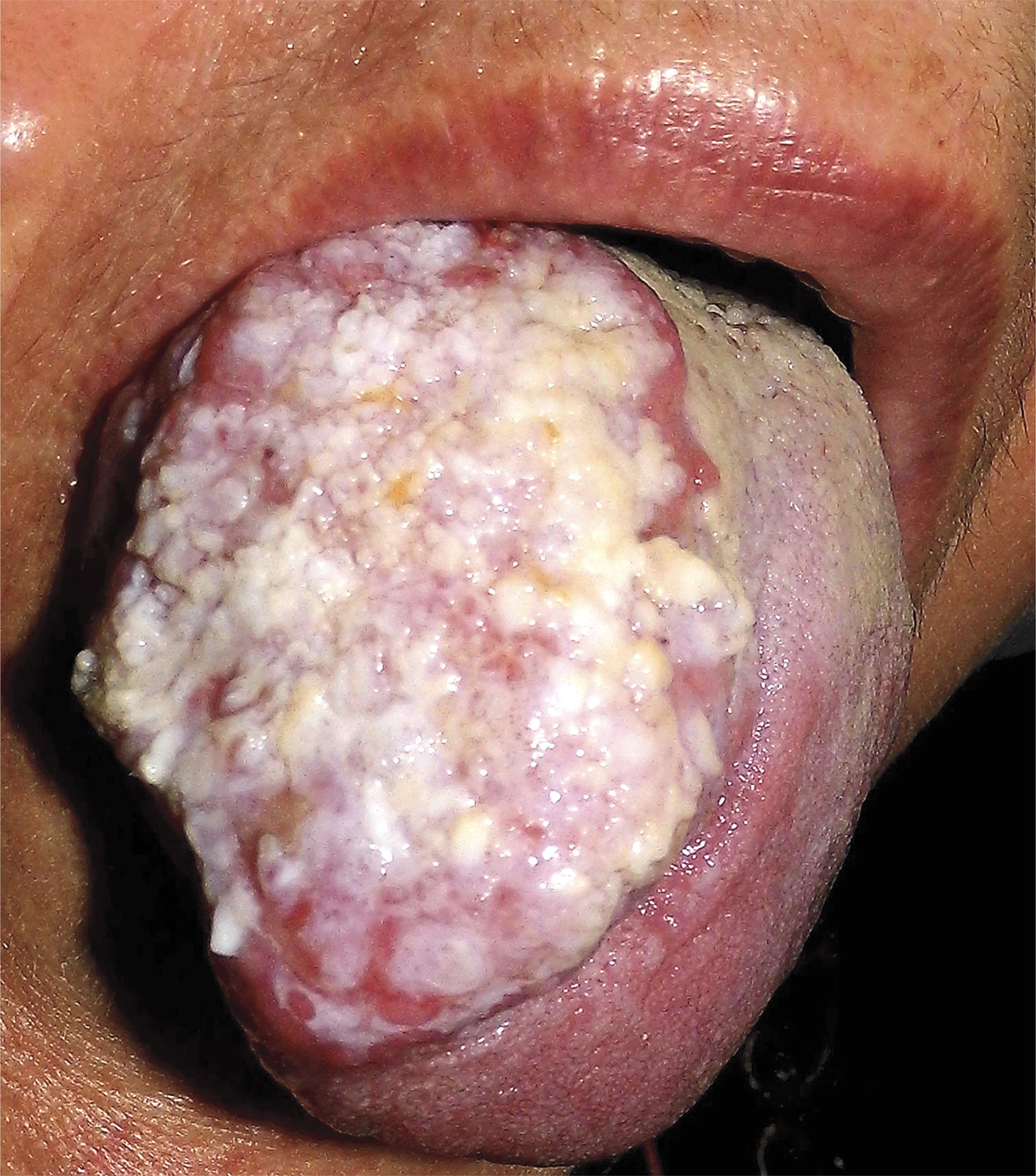 Hpv Tongue Lesions Verrucous Tongue Lesio...