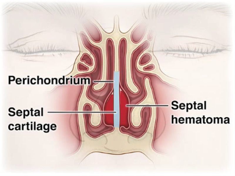 Treatment Of Hematoma Of The Nasal Septum Nejm
