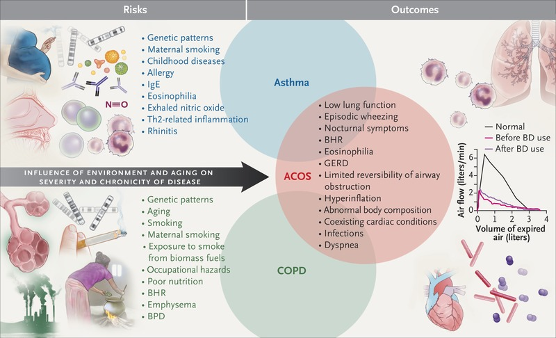 The Asthma–COPD Overlap Syndrome | NEJM