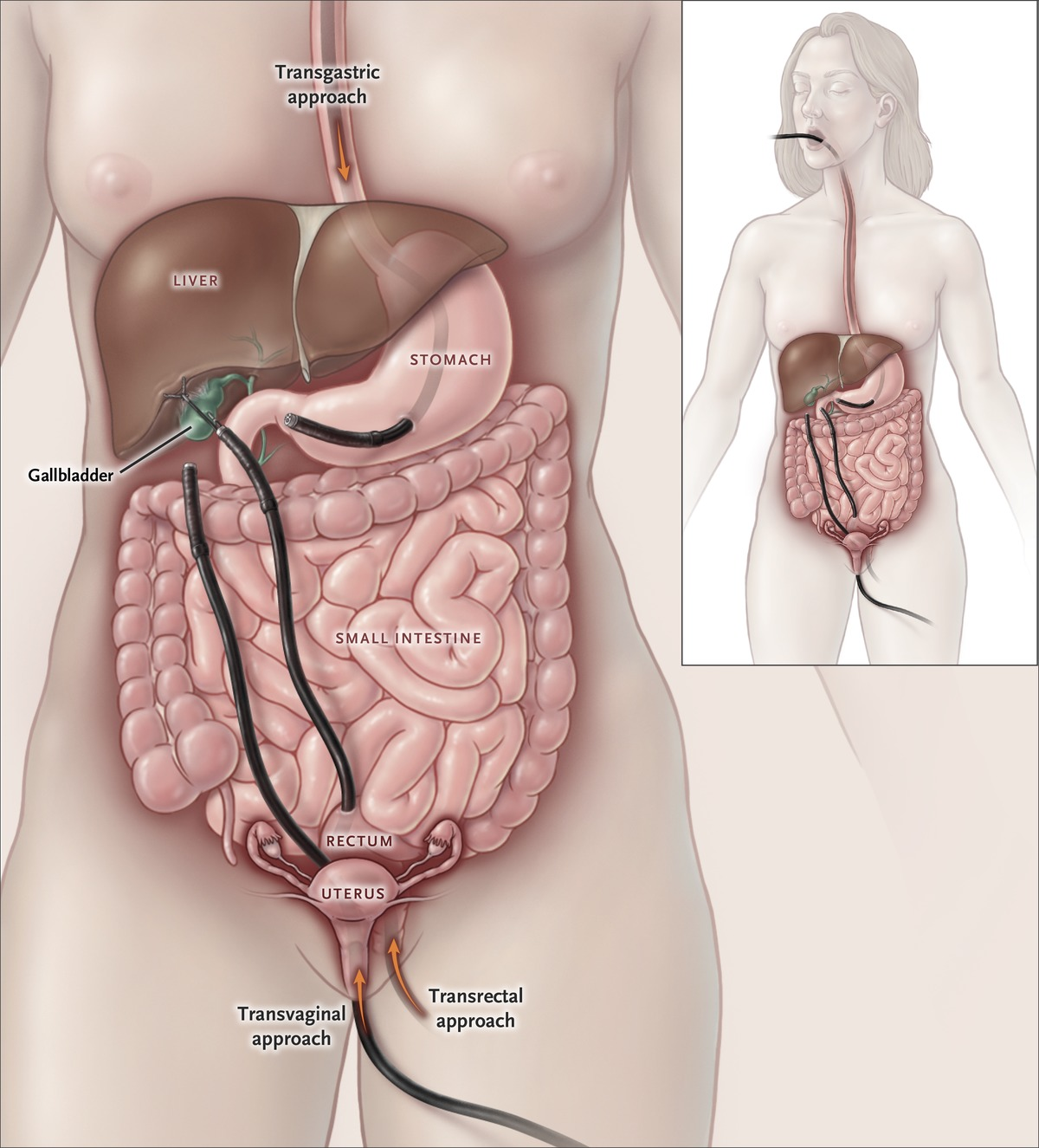 Interventional Approaches to Gallbladder Disease | NEJM