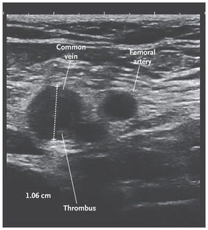 Pregnancy Complicated by Venous Thrombosis