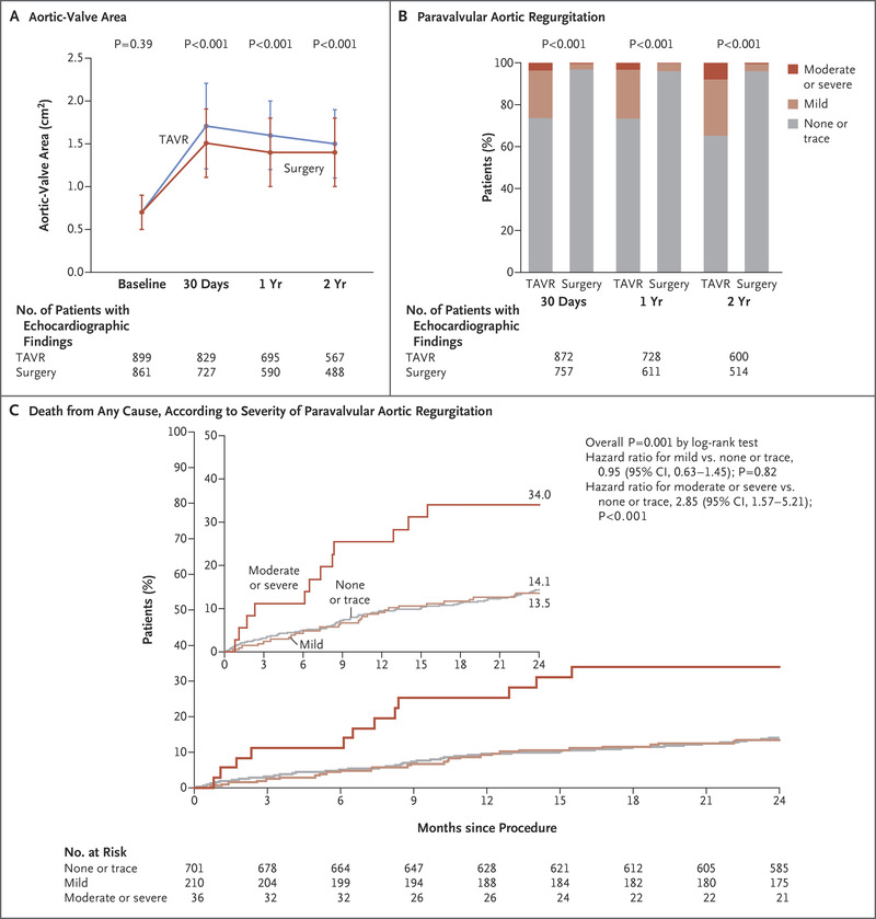 Transcatheter or Surgical Aortic-Valve Replacement in Intermediate