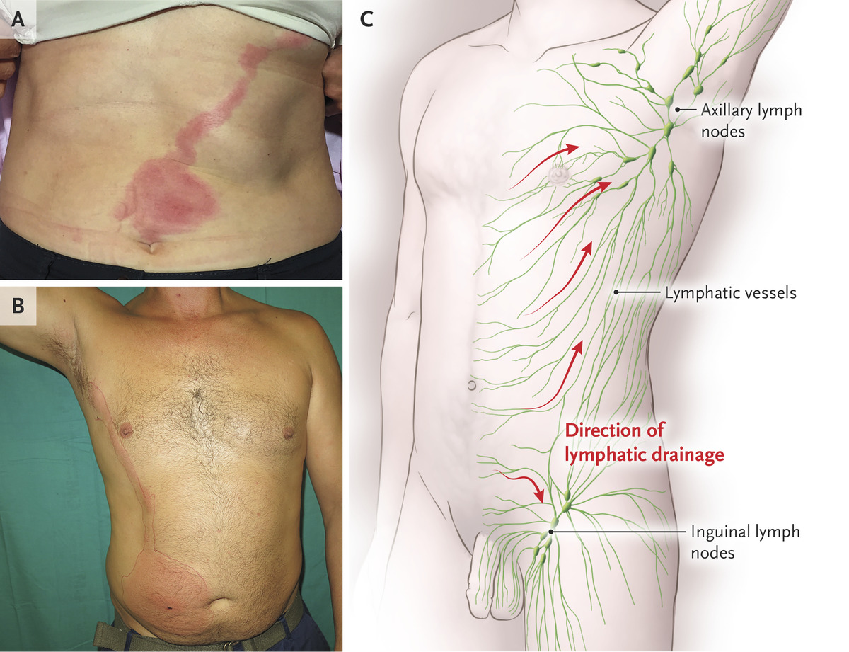 Lymphangitis On The Abdomen Nejm