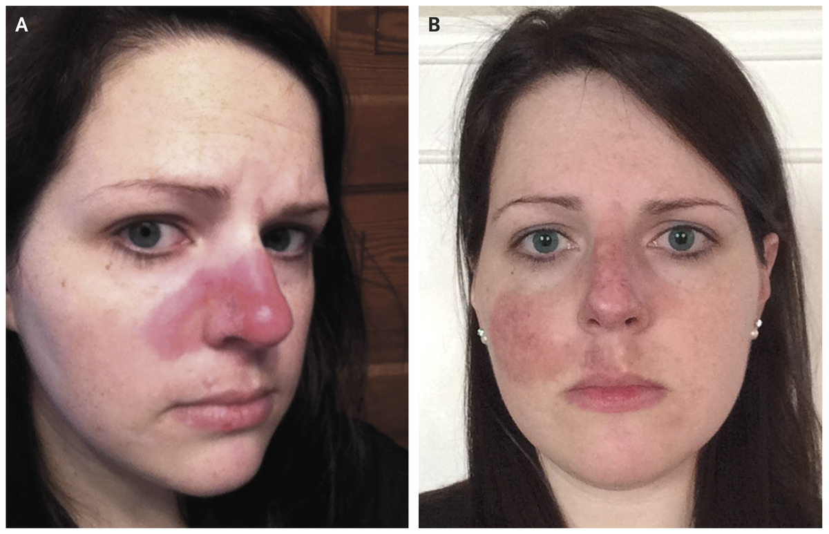 Cutaneous Lupus The Pimple That Never Went Away Nejm