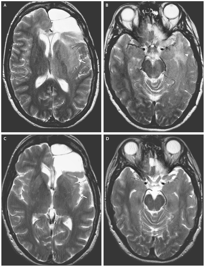 Case 38-2016 — A 52-Year-Old Woman with Recurrent Oligodendroglioma