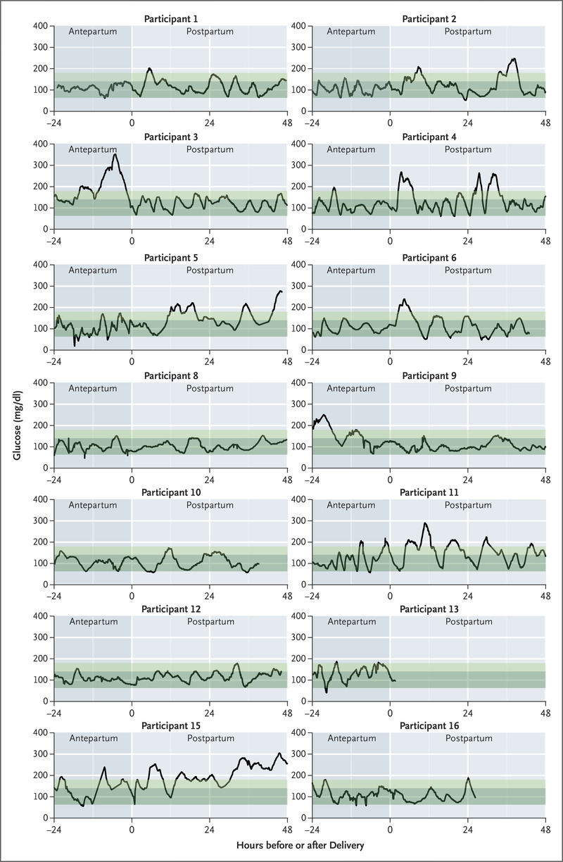 Closed-Loop Insulin Delivery during Pregnancy in Women with