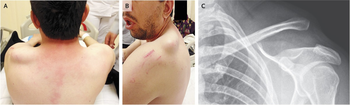 Acromioclavicular Joint Separation | NEJM