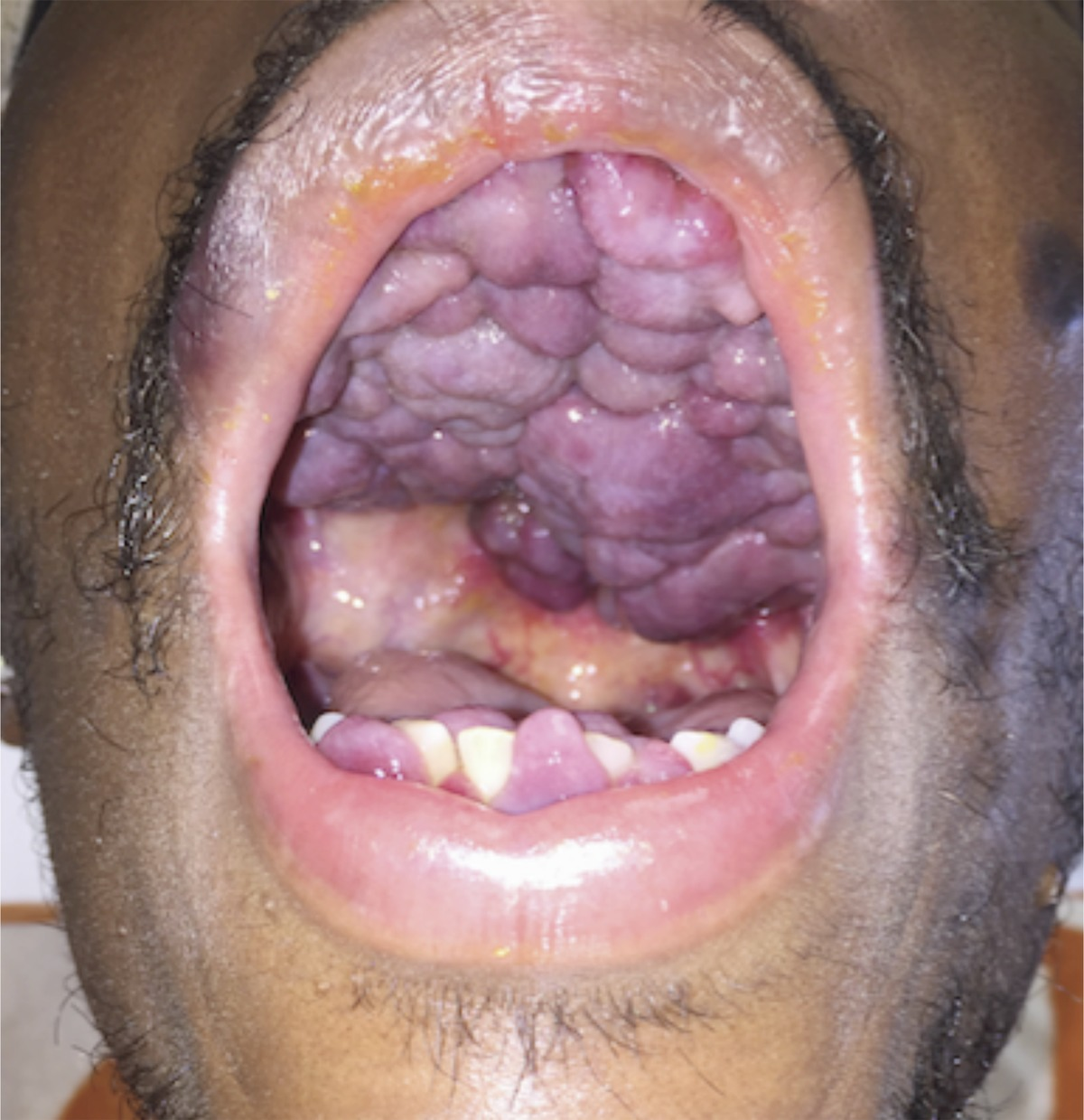 Kaposi's Sarcoma of the Oral Cavity | NEJM Kaposi Sarcoma Mouth