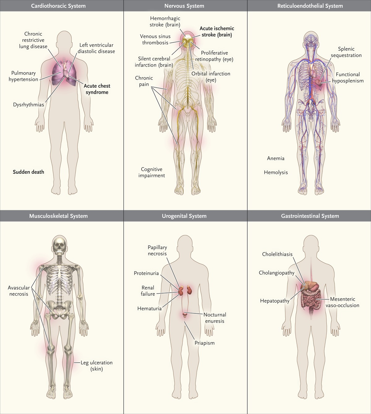Sickle Cell Disease | NEJM