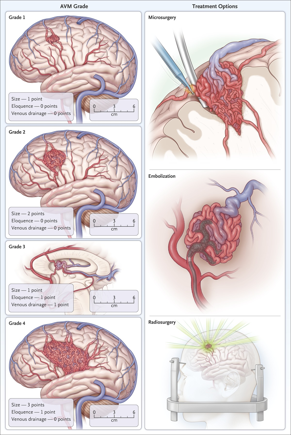 Arteriovenous Malformations Of The Brain Nejm