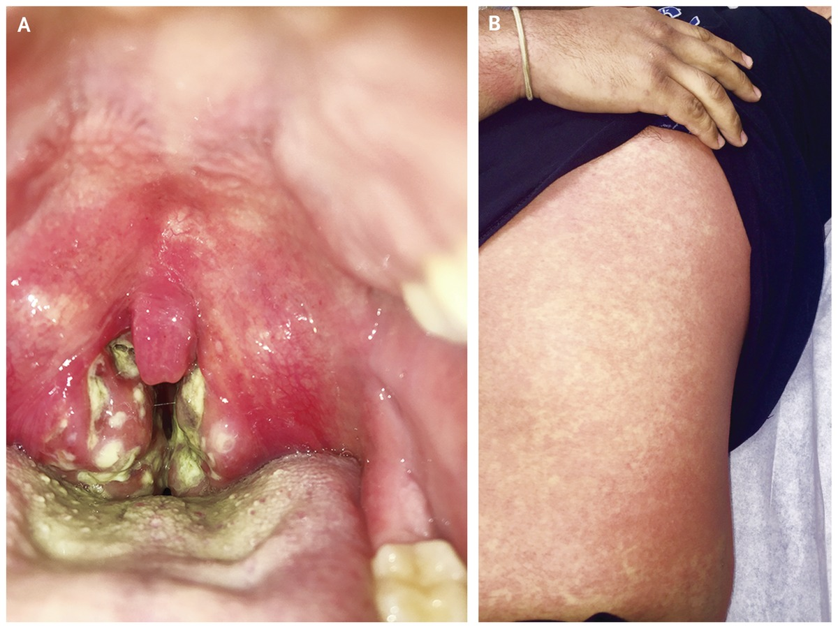 Enlarged tonsils sore throat — photo 6