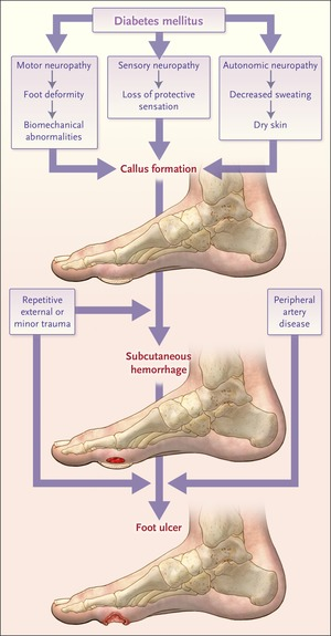 Diabetic Foot Ulcers And Their Recurrence Nejm